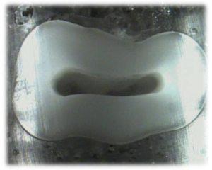 175-6-Endo-ULTRADENT