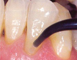 44-3-dentin-sealant--ULTRADENT