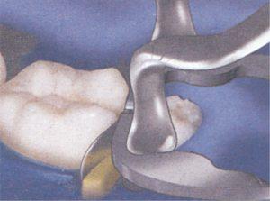 51-13-Omni-matrix-sectional-ULTRADENT
