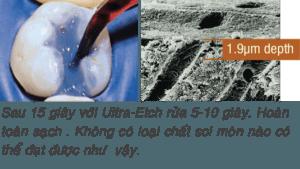 59-12-UltraEtch-ULTRADENT