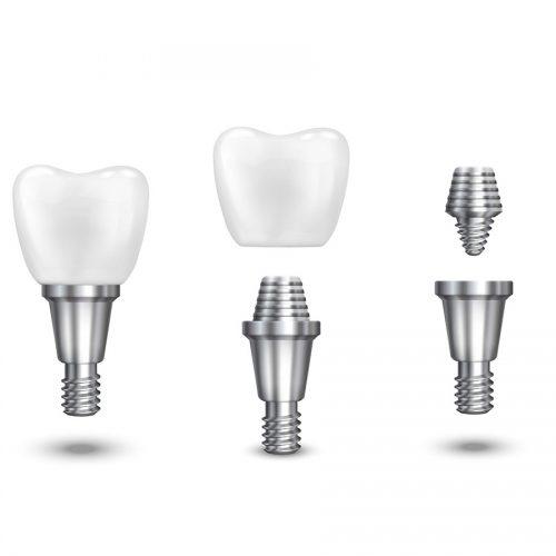 Surgery & Implant